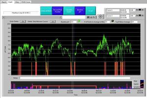 pH Probe 7 - Severe Reflux Graph